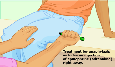 Anaphylaxis_Treatment