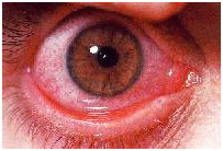 Seasonal allergic conjunctivitis