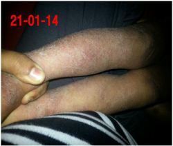 Skin_Infection